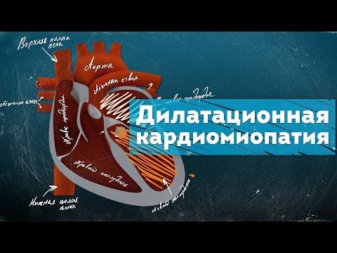 Дилатационная кардиомиопатия. Патогенез. Dilated Cardiomyopathy 3D