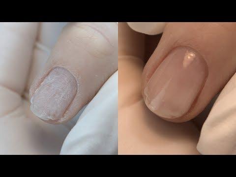 Gribok der Nägel der Beine die Volksmedizin, wie zu behandeln
