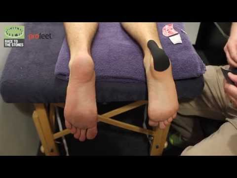Video What to do with a heel blister