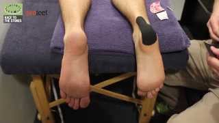 What to do with a heel blister