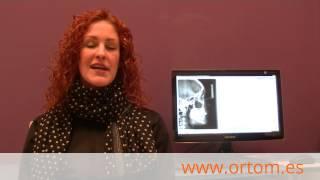 Testimonio de ortodoncia zafiro: Zaida