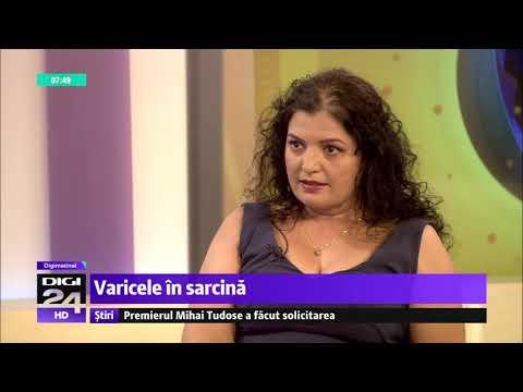 Varicoză și tratament limfostasis
