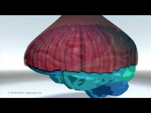 Screenshot of video: Speech difficulties