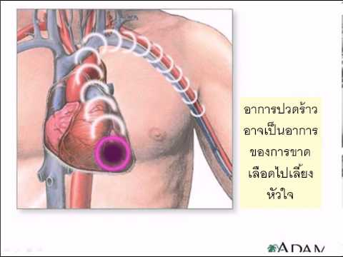 เส้นเลือดขอดในหลอดเลือดดำที่ขาภาพถ่ายผ่าตัด