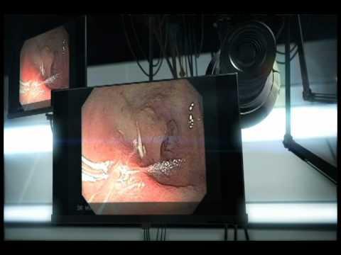 Human féreghajto tabletta