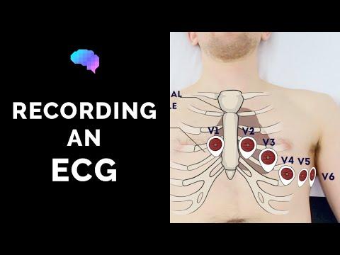 Hipertenzije i opće anestezije