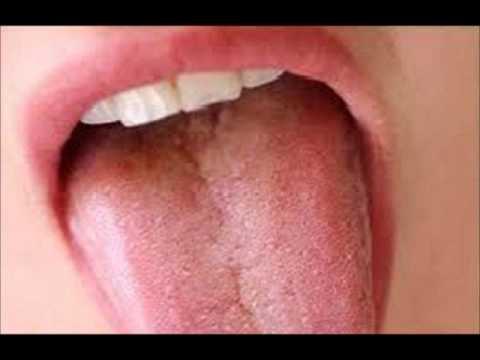 Como es posible determinar el hongo sobre las uñas