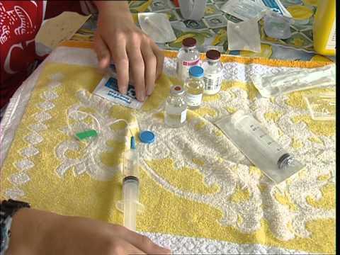 Laloès la varicosité les rappels
