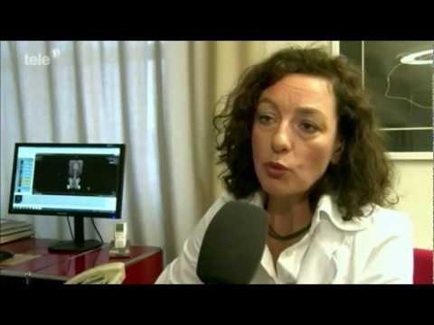 Exazerbation einer degenerativen Bandscheibenerkrankungen der Brust-Forum