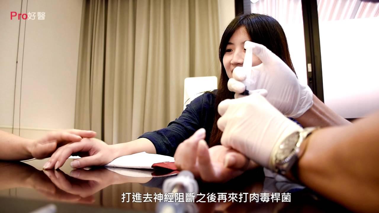 手汗多該怎麼辦?肉毒桿菌治手汗
