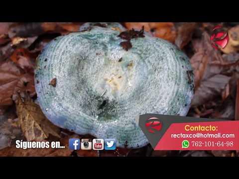 El ungüento de los hoyos para las personas del hongo de las uñas