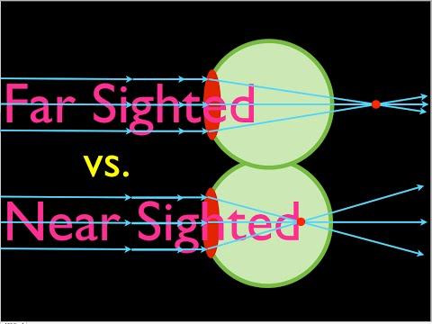 A lézeres látáskorrekció relevanciája
