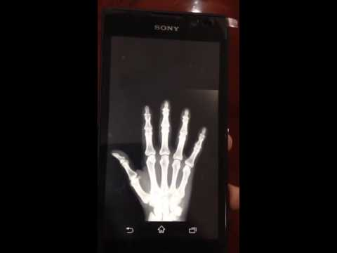 Video of X-Ray Scanner Prank