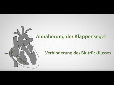 Koronare Herzkrankheit hypertensive Herzkrankheit