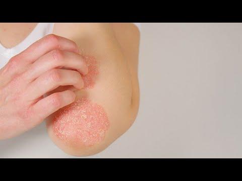 La psoriasis el tratamiento por el jabón