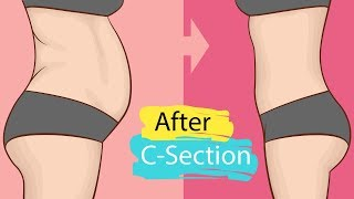 8 Highly Effective Weight Loss Exercise after C Section