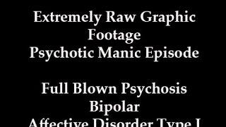 Extreme Graphic Psychosis Mania Bipolar Disorder Full Blown Manic Episode Raw Footage