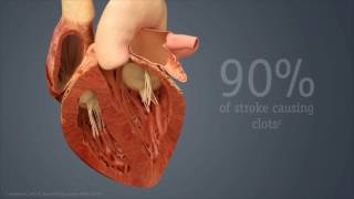 Device Reduces Stroke Risk, Eliminates Need For Blood Thinners In Patients With Atrial Fibrillation
