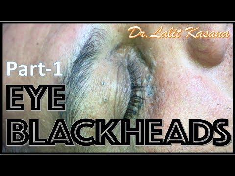 Download Big Deep Blackheads Removal By Dr Lalit Kasana Video 3GP