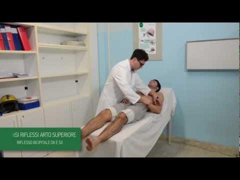 Lussazione congenita del ginocchio