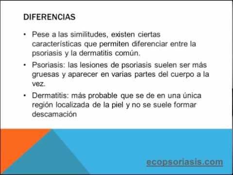 Atopichesky la dermatitis el pronóstico por la curación