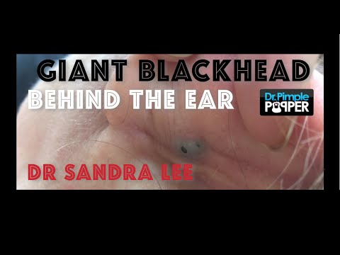 Massive Blackhead Behind Ear!