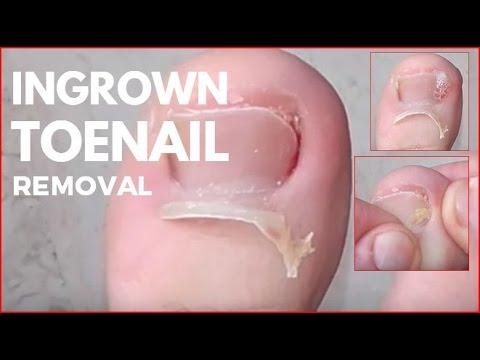 Neovir din negi genitale
