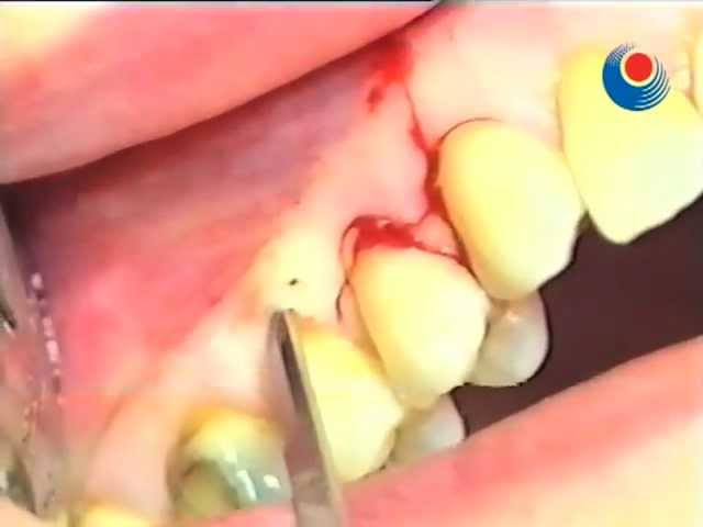 Gingival Recession - Surgery tutorial 1