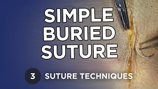 Simple Buried Suture - Suture Techniques - Michael R. Zenn, MD