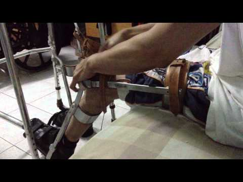 การรักษาด้วยคลื่นกระแทกบนกระแทกเท้า