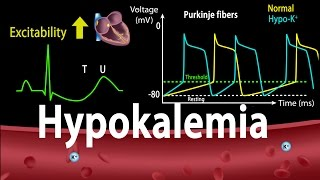 Hypokalemia: Causes, Symptoms, Effects on the Heart, Pathophysiology, Animation.