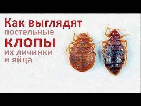 Образ жизни гельминтов