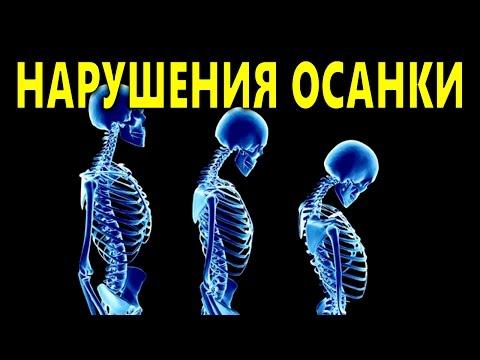 Сколиоз и асимметрия мышц исправление