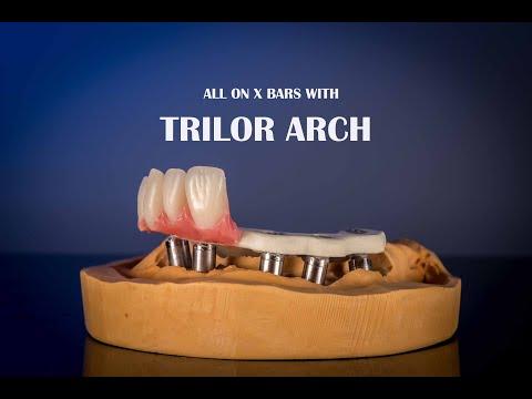 Bioloren Trilor Arch Product Video