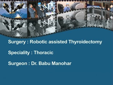 Robotic Assisted Left transaxillary Thyroidetomy