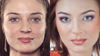 Смотреть онлайн Свадебный макияж для проблемной жирной кожи лица