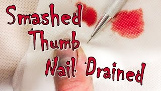 Smashed Thumb Nail Drained with Hot Paper Clip