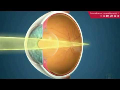Линза для восстановления зрения