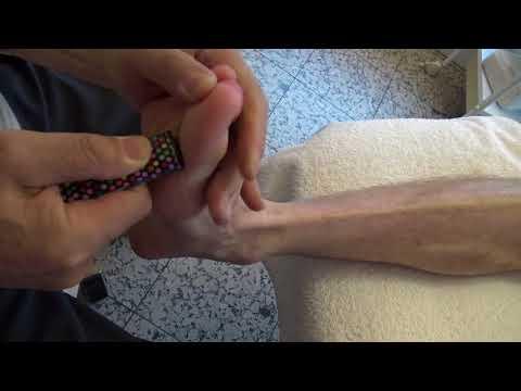 Gonarthrose Knie Arthritis