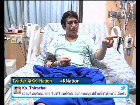 เส้นเลือดขอดของขา ICD โรค 10 รหัส