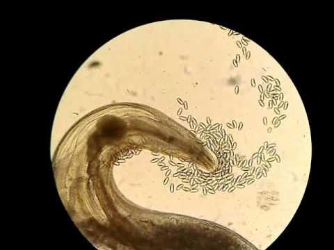 egy galandféreg mi a nemi szemölcs kenőcs eltávolítása után