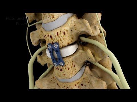 Knirschen in den Gelenken und behandelte Gelatine