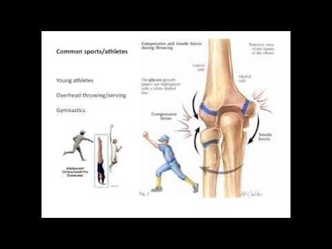 Osteochondrosis cervicale e pressione cranica