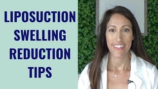 Liposuction Healing & Recovery Tips | How to REDUCE Lipo Swelling | Post Liposuction Care Guide