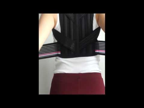 Виды искривление спины