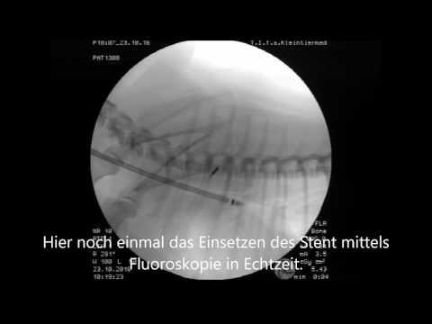Die Größe der Prostata-Adenom 1 Grad