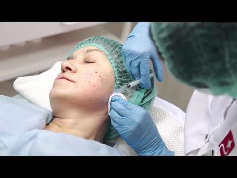 Заболевание печени лечение гепатит в