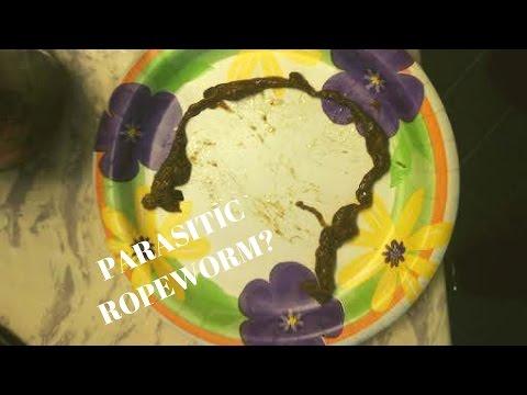Ang homeopathy medicines para sa mga worm