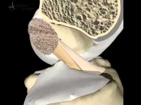 Ursachen von Rückenschmerzen zu welchem Arzt zu gehen