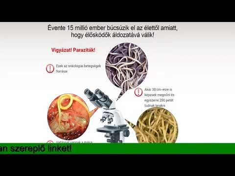 Urticaria, helminthiasis